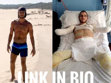 Fatalna pomyłka lekarzy. 24-latek stracił stopy i dłonie