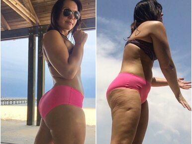 Cudowny sposób na cellulit? 27-latka udowadnia, że wystarczy... światło