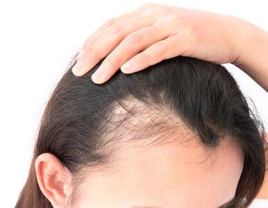 Czym jest łysienie plackowate i jak je leczyć?