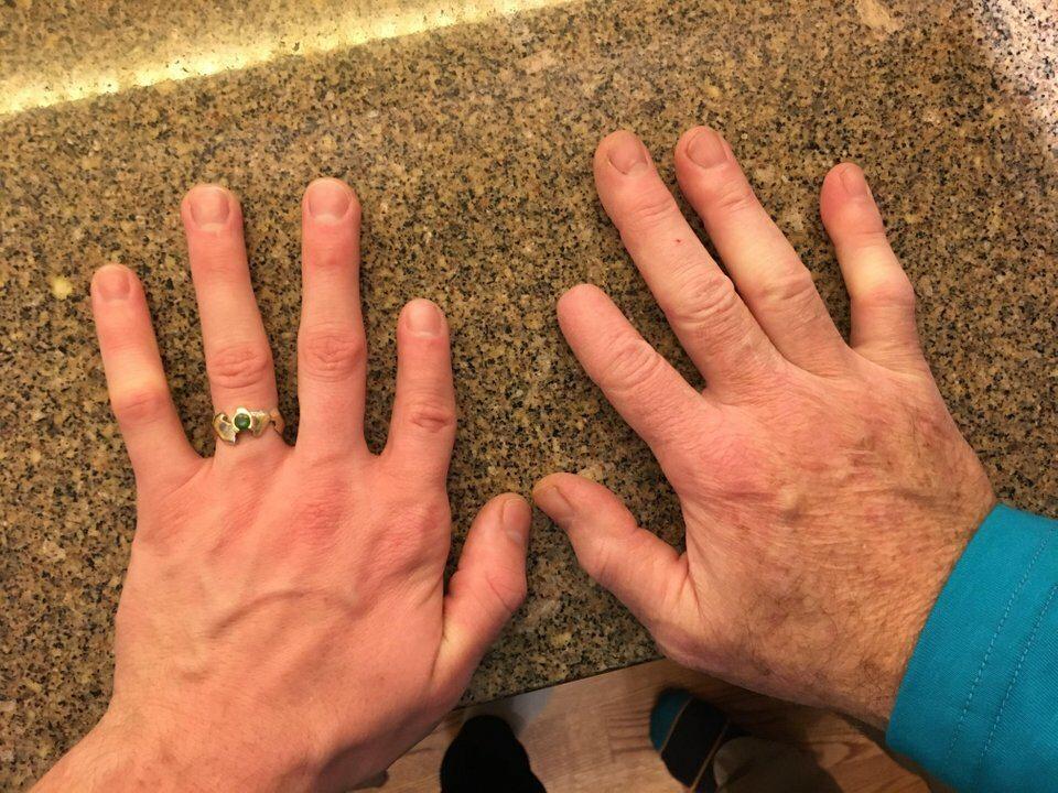 Ojciec stracił kawałek palca w wieku 10 lat. Jego syn od razu urodził się z krótszym